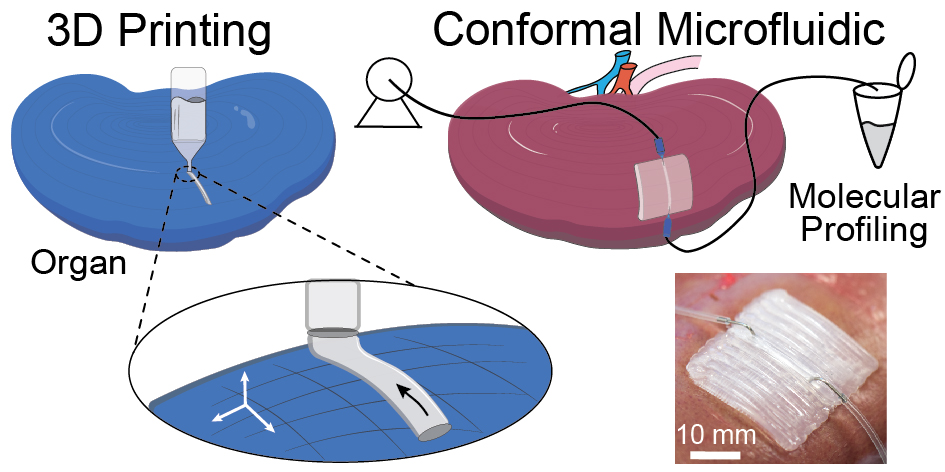 3D Printed Conformal Microfluidics for Isloation and Profiling of Biomarkers from Whole Organs Lab on a Chip 17, 2561-2571 (2017)